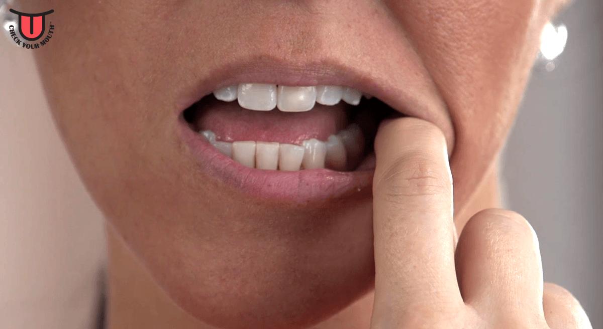 Step-1-Lips